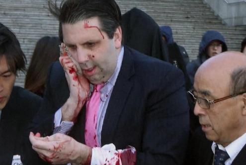 В Сеуле  напали на посла США с опасной бритвой