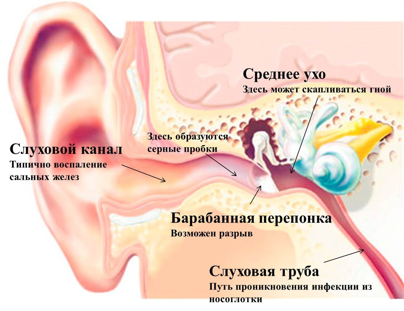 Баротравма среднего уха